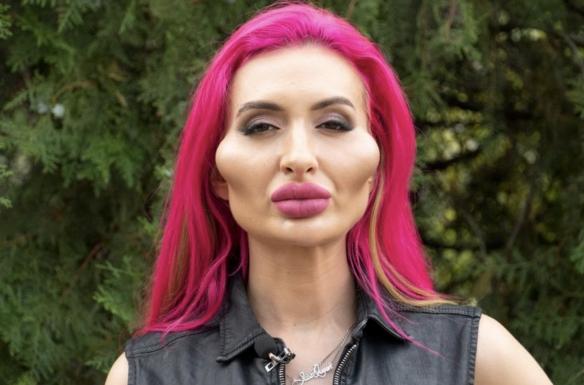 乌克兰网红自称拥有世界最大脸颊